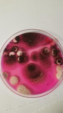 aspergillus niger dans un lavage trachéal