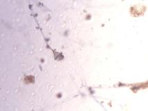 Absidia corymbifera